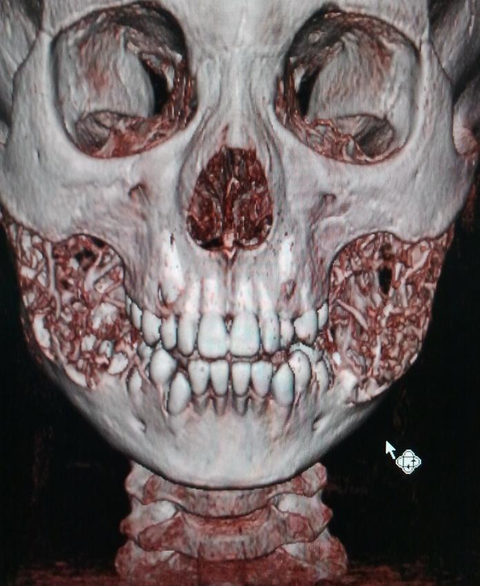 Холестеатома
