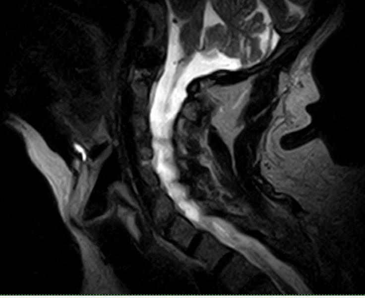 Видео упражнений при шейном остеохондрозе по шишонину