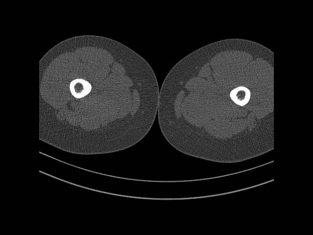 остеомиелит рентген снимки