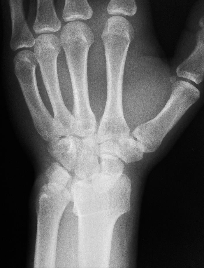 Болит нога после протезирования коленного сустава