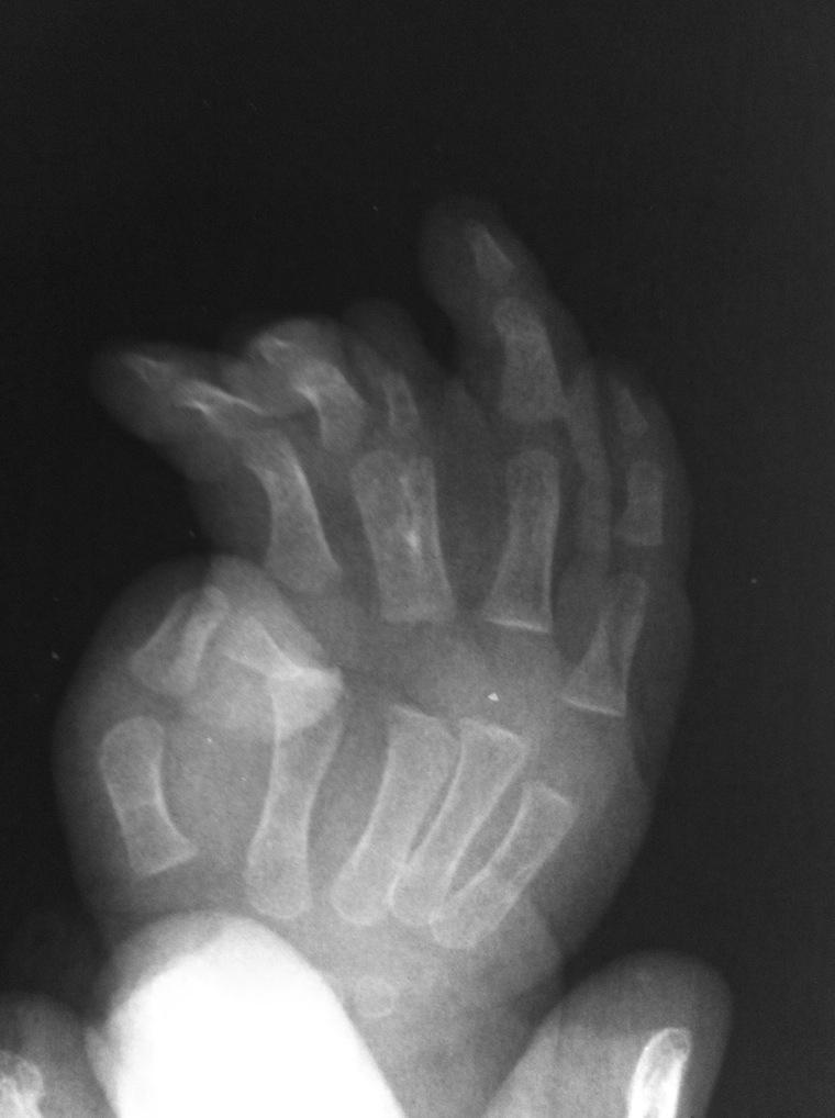 Рефлекторно сегментарный массаж при остеохондрозе