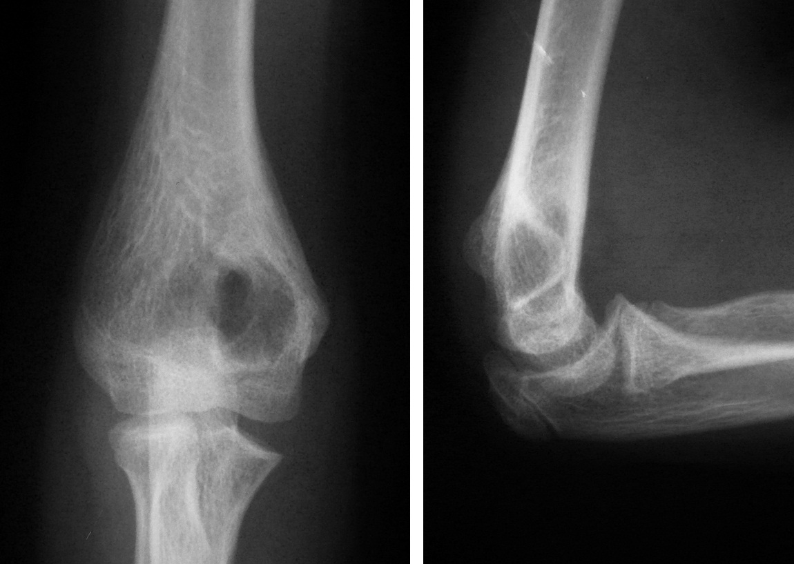 Киста локтевого сустава эскулап коленного сустава