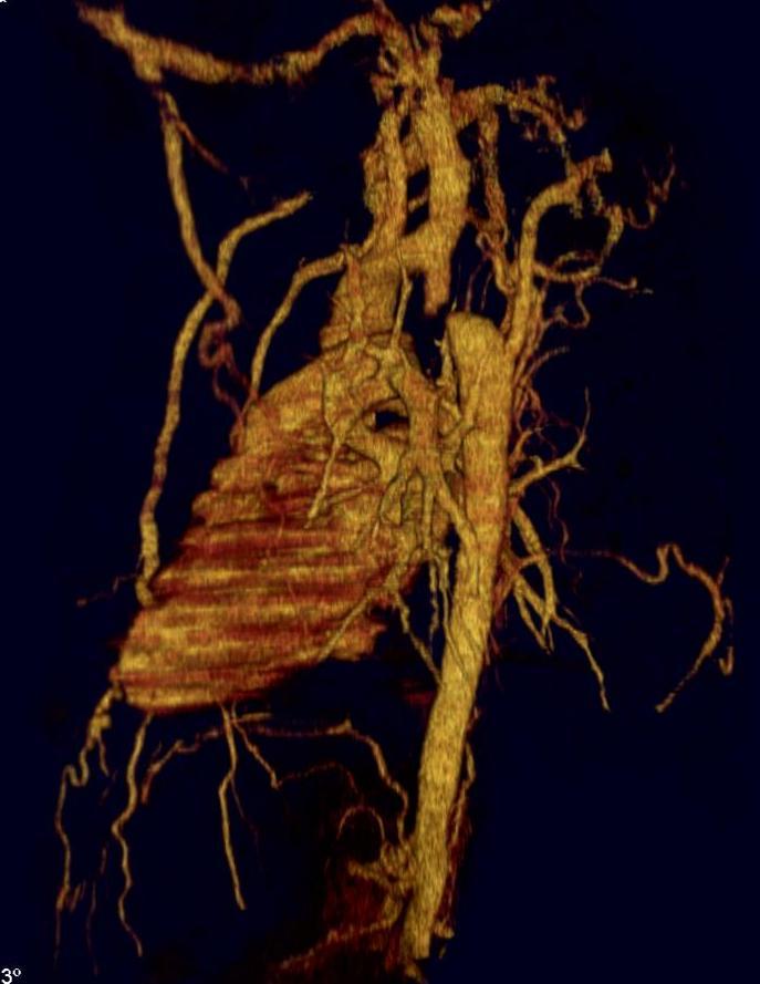 Коарктация (Аорты)