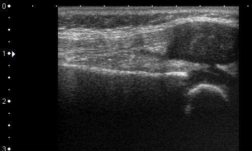 Литература по узи коленных суставов карловы лечение суставов