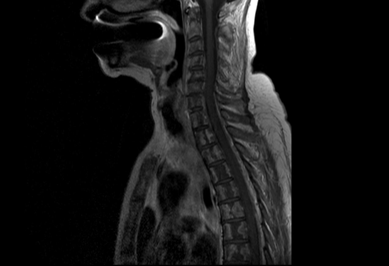 Болит шея и плечи лечение