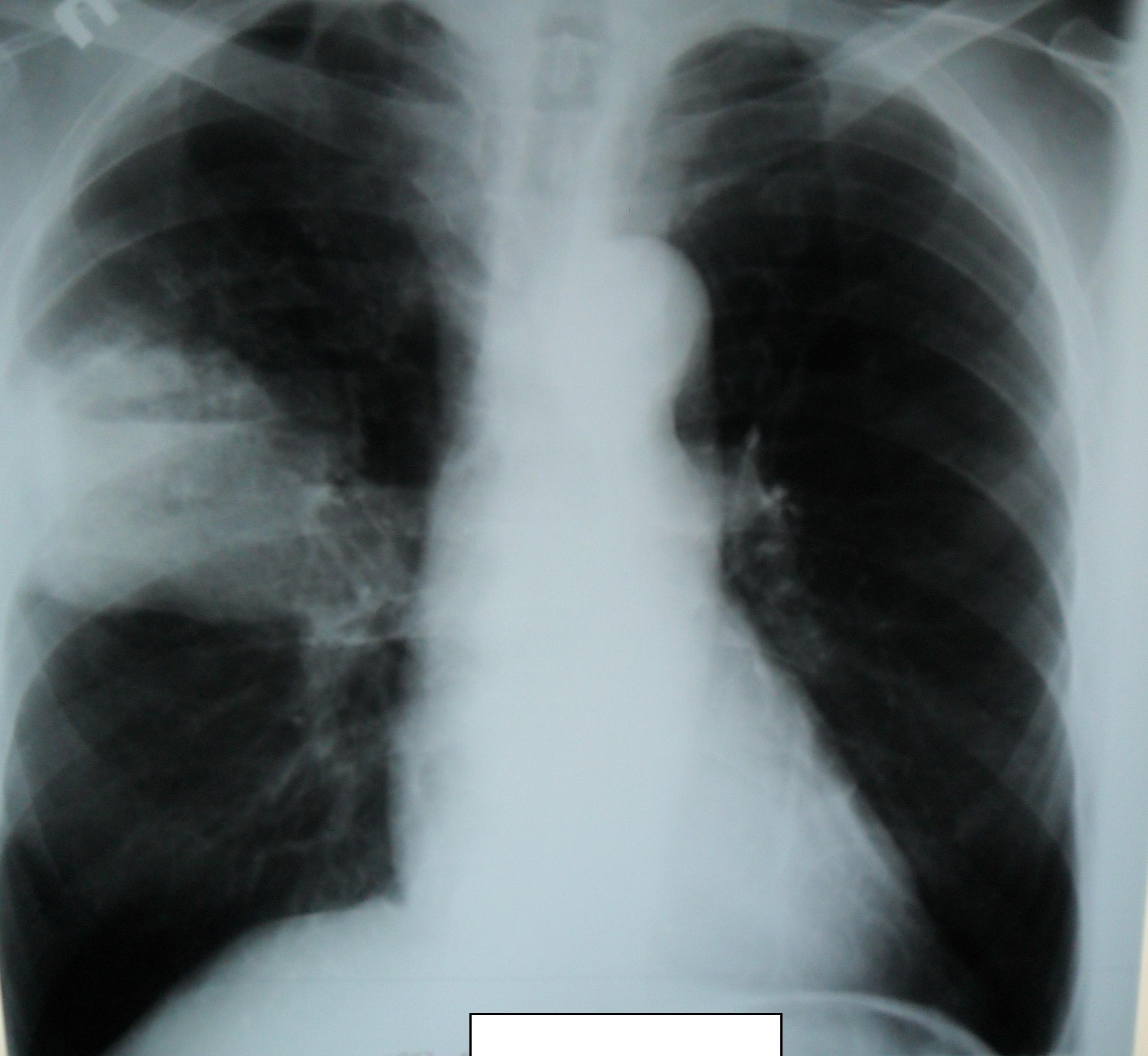 Раком боком и с прискоком 13 фотография