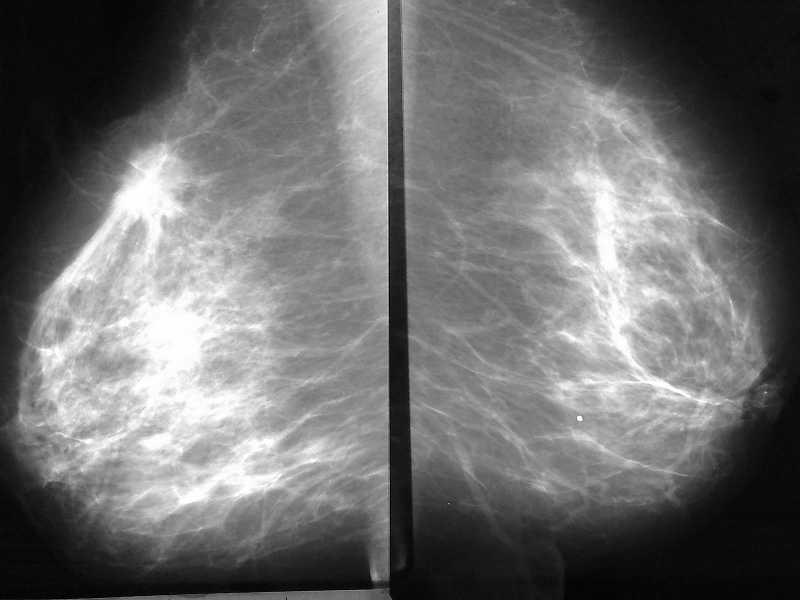 маммография рака молочной железы