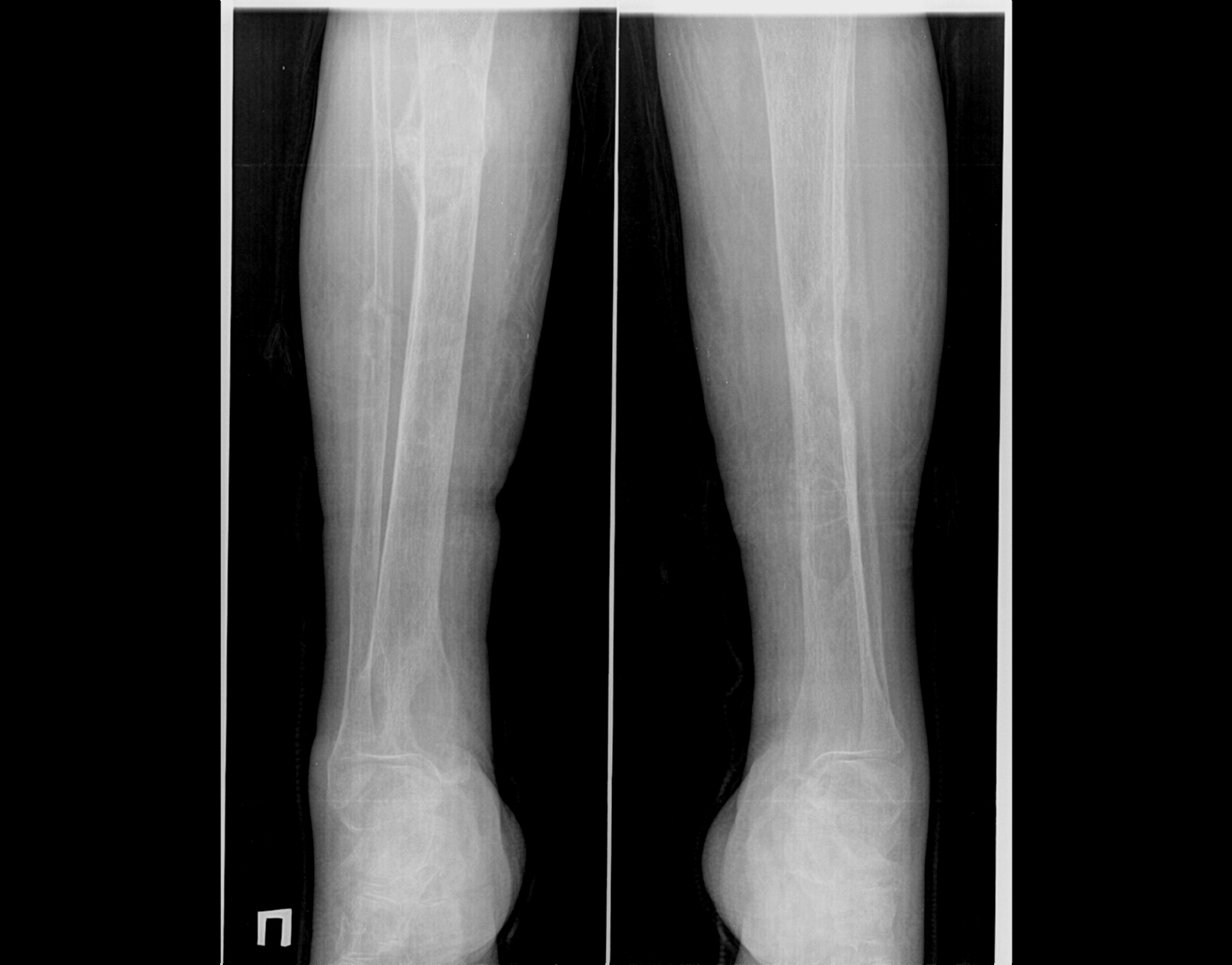 Остеодистрофия фото