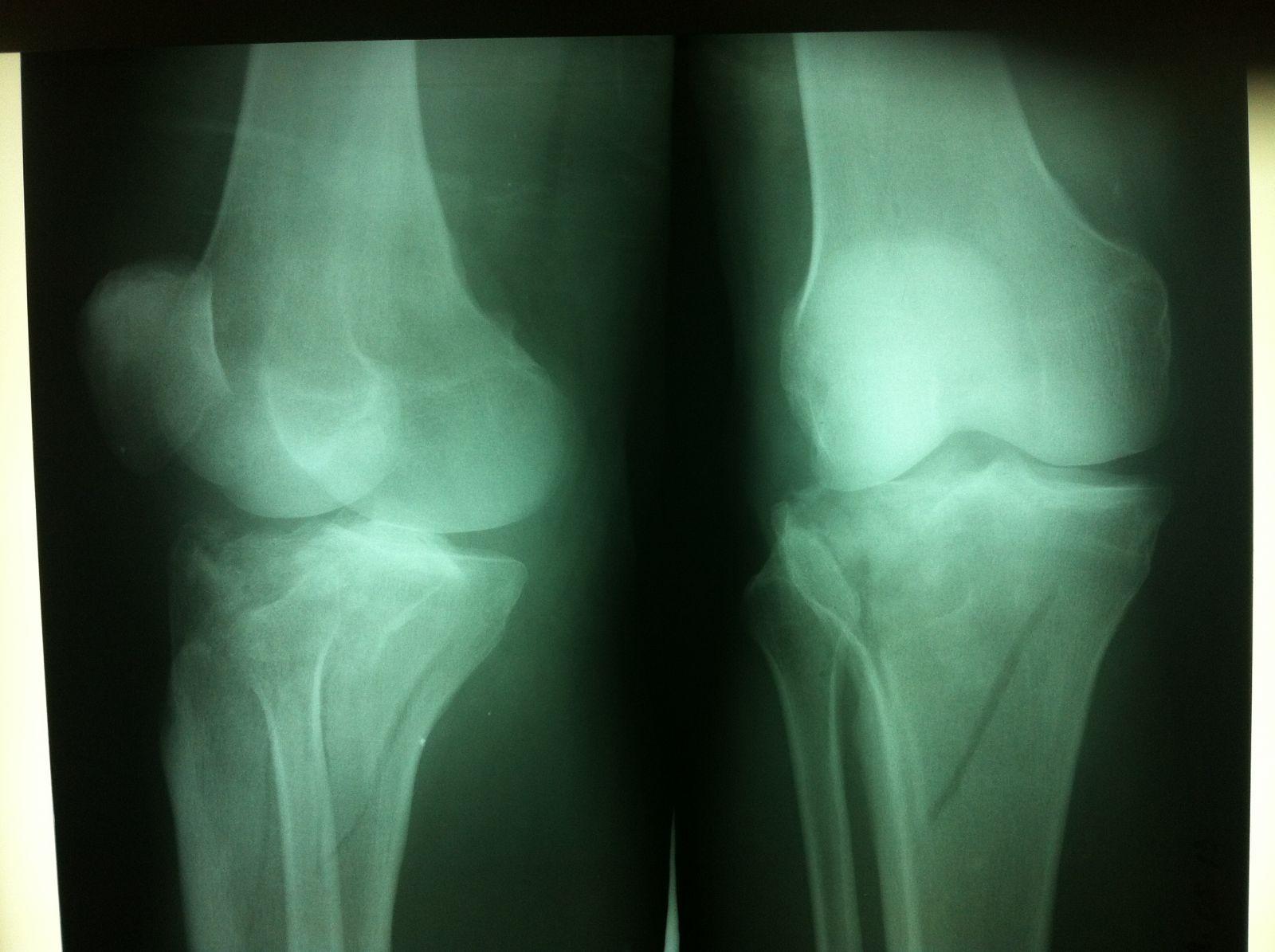 Рентген коленного сустава минск боли в суставах локтевом коленном суставе
