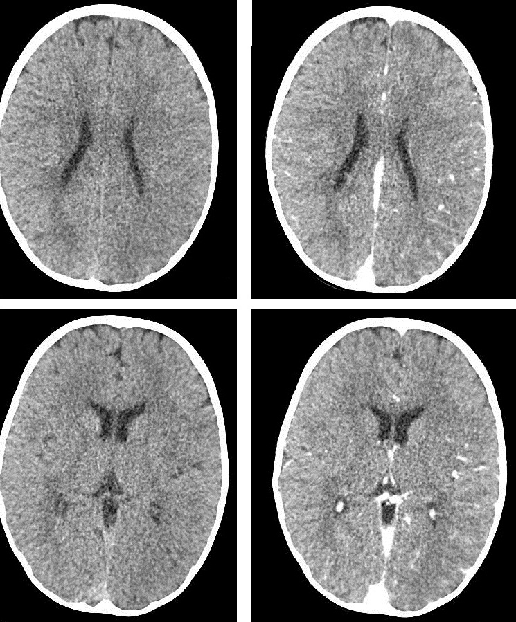 a clinical description of rasmussens encephalitis