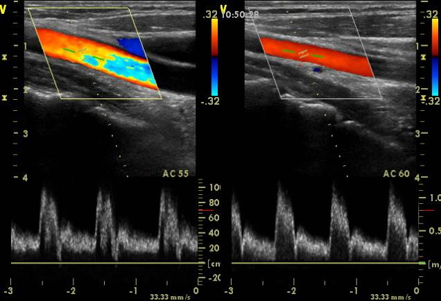 синтетические материалы доплер исследование шейных артерий обычной одежды бросается