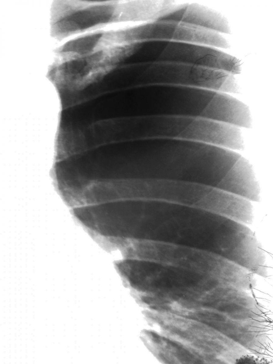 Синдром Маклеода фото