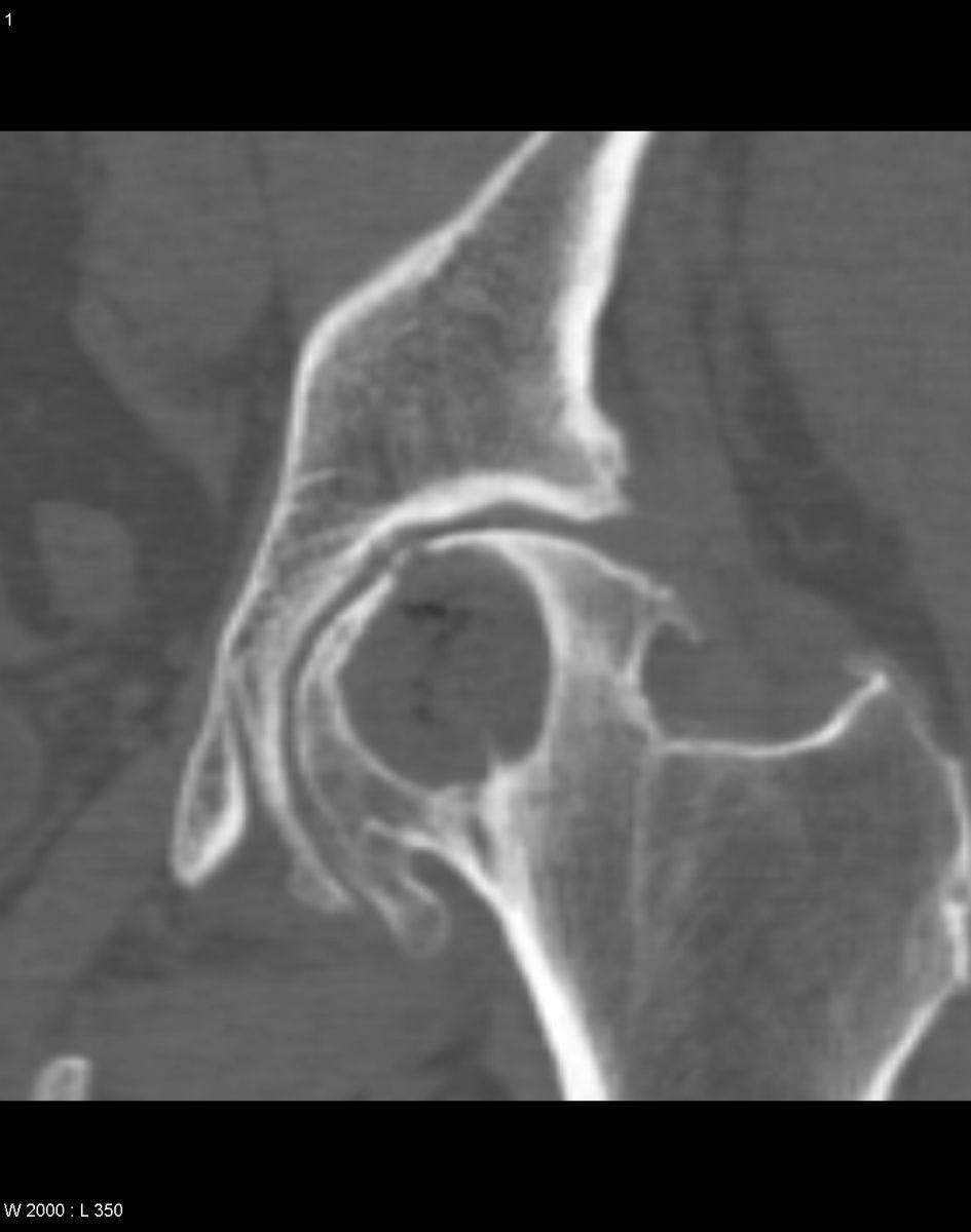 Киста тазобедренного сустава в минске сосновые почки для лечения суставов