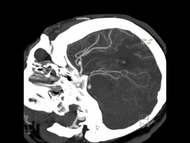 Узи головного мозга взрослым спб