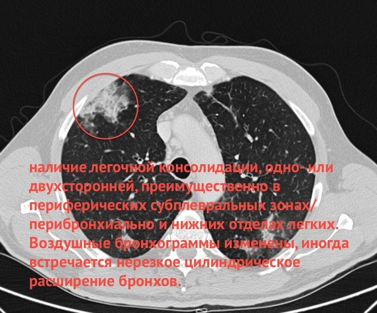 ОГК ГАЛЕРЕЯ ПАТОЛОГИИ КТ МСКТ В ИНТЕГРАЦИИ И АЛГОРИТМЕ  Так как доминирующим проявлением является консолидация пациентам зачастую ставится диагноз пневмония но в динамике на фоне лечения антибиотиками она не